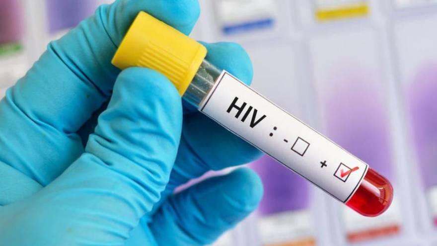 Algunos fármacos que se usan para tratar el VIH se están probando contra coronavirus