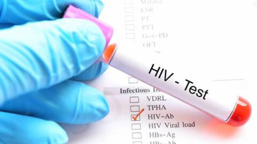 La inmunodepresión es un claro factor de riesgo de contraer coronavirus