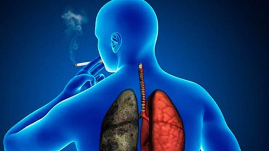 Las afecciones respiratorias aumentan el riesgo de contraer coronavirus