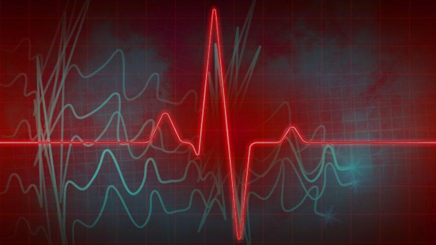 Por temor al Covid19, bajaron las consultas del corazón.