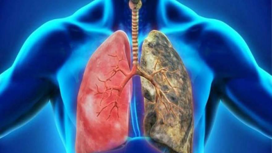 Los trastornos pulmonares pueden causar falta de aire