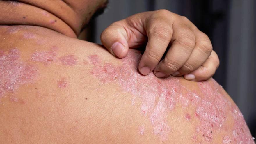 La psoriasis produce este tipo de manchas rojas en la piel