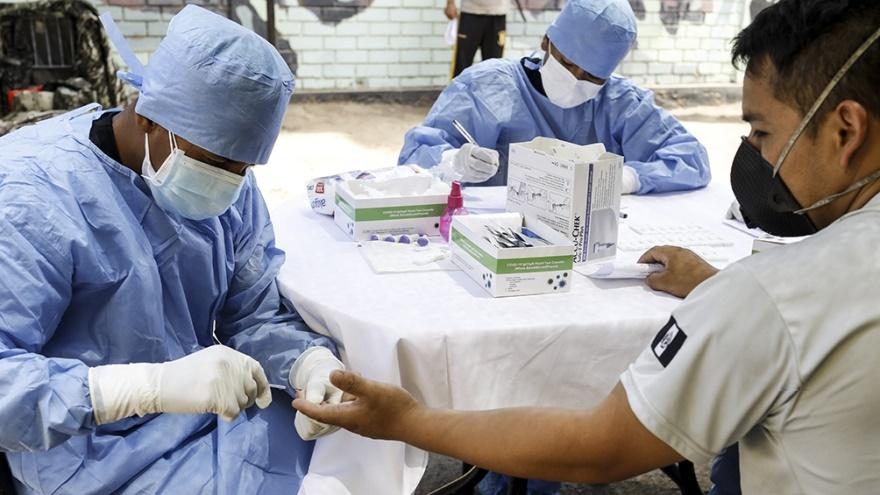 El tiempo promedio que lleva fabricar una vacuna es de alrededor 15 a 20 años