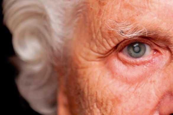 La maculopatía es un trastorno que suele afectar a personas mayores