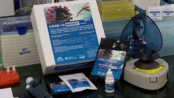 Este lunes Neokit entregará al ministerio de Salud el primer lote de los kits de detección rápida de coronavirus