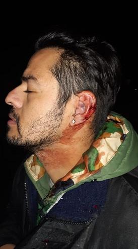 El testimonio de uno de los heridos durante el enfrentamiento