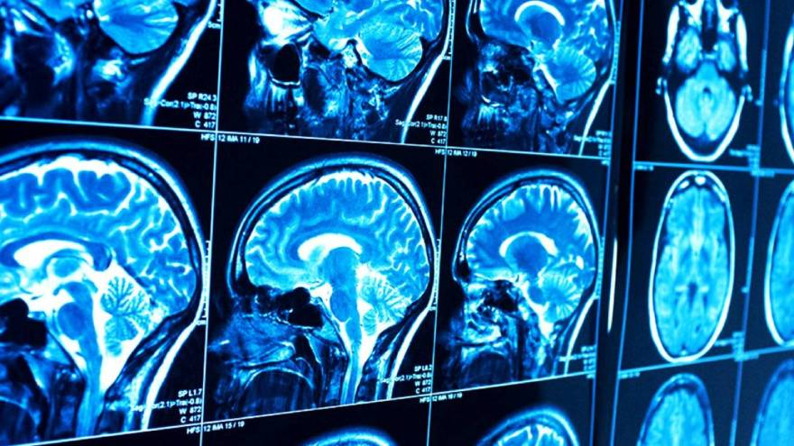 La conexión del cerebro a una PC, el desafío de Musk.