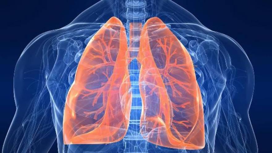 El Covid-19 puede presentar, al igual que otras enfermedades, compromiso pulmonar