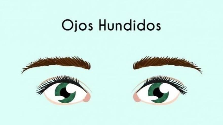 5. Ojos hundidos