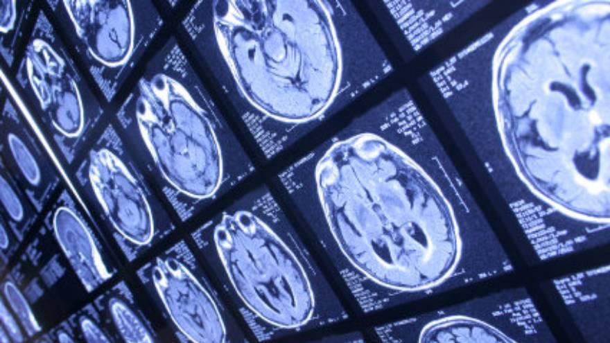 El Alzheimer es una patología que produce olvidos, fallas en la memoria, en la expresión, entre otros síntomas