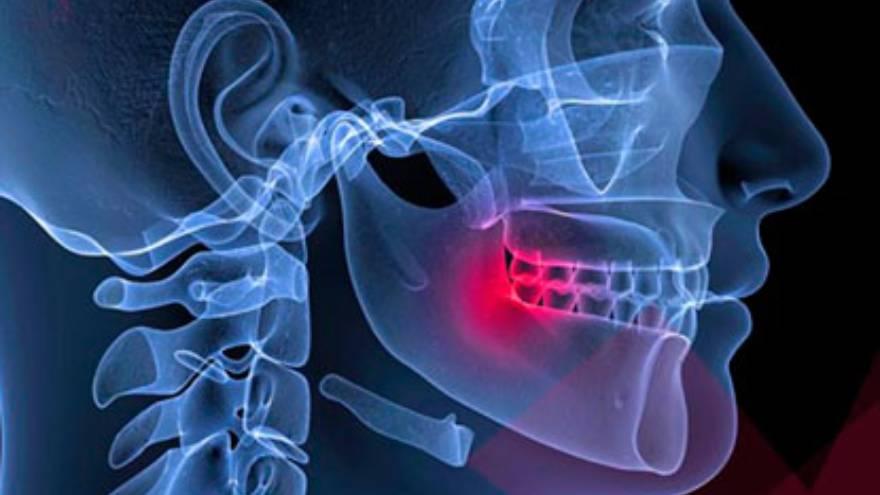 El desorden temporomandibular es una de las causas de dolor de mandíbula