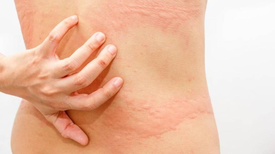 La urticaria es una de las causas de manchas rojas en la pielq