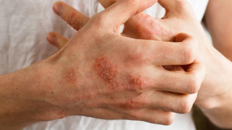 La dermatitis de contacto es una de las causas de manchas rojas en la piel