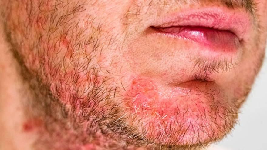 La dermatitis seborreica puede causar este tipo de manchas rojas en la piel