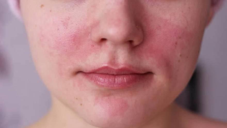 La rosácea es una de las patologías que puede causar manchas rojas en la piel