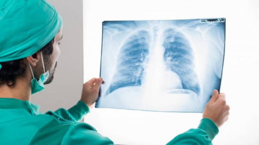 La fibrosis pulmonar es una patología que puede aparecer como secuela del Covid-19 o de otras enfermedades