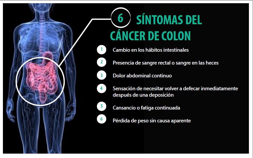 Infografía sobre síntomas del cáncer de colon