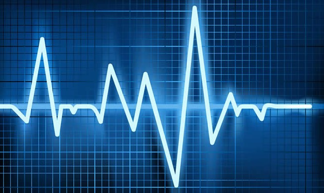 heart-arrhythmia