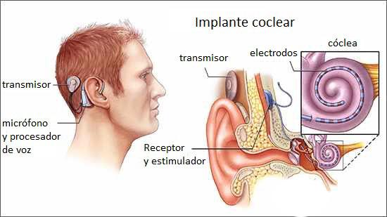 ImplanteCocleargrafico
